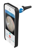 Smartphone Otoscope for Doctors and Patients